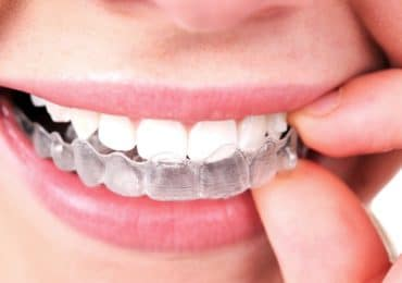Treat of Invisalign with Affordable Cost at Townville Orthodontics