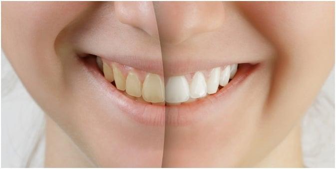 Zoom Teeth Whitening In Jacksonville