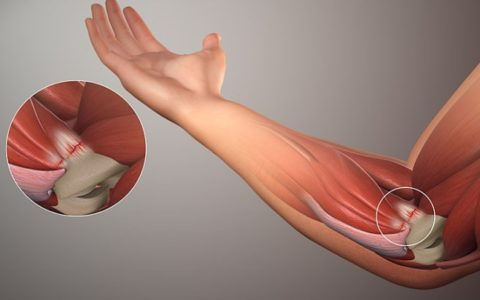 Orthopedic Conditions that Call for Elbow Surgery